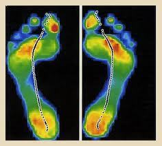 Vancouver Orthotics, Electronic Gait Scan