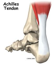 Achilles Tendonitis Treatment in Vancouver