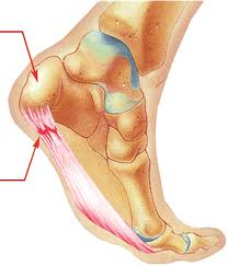 Plantar Fasciitis in Vancouver