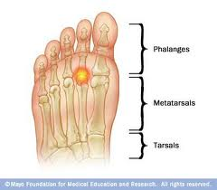 Metatarsal Pain in Vancouver