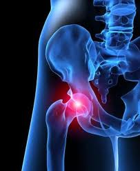 Hip Pain Treatment in Vancouver