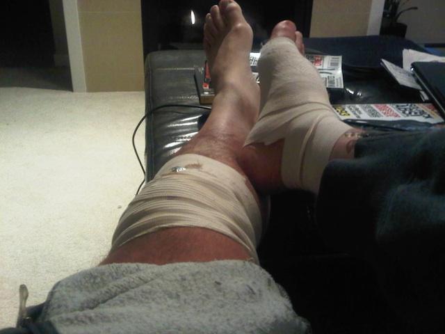 Surgery Recovery Angus Reid.jpg