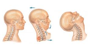 Whiplash Injury Treatment in Vancouver