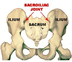 SI Joint Pain (Sacro Iliac Joint Syndrome) Vancouver
