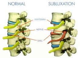 Spinal Hygiene in Vancouver