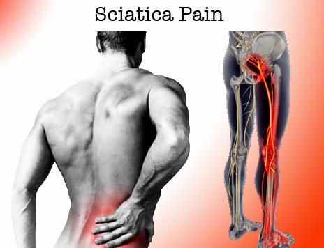 sciatica-low-back.png