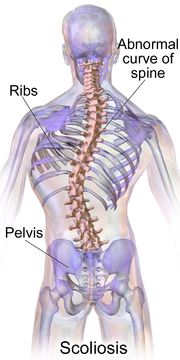180px-Blausen_0785_Scoliosis_01.png